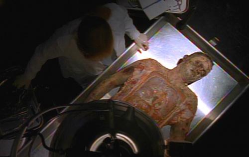 2X02_autopsy